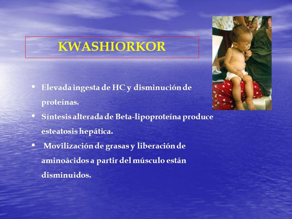 KWASHIORKOR Elevada ingesta de HC y disminución de proteínas.
