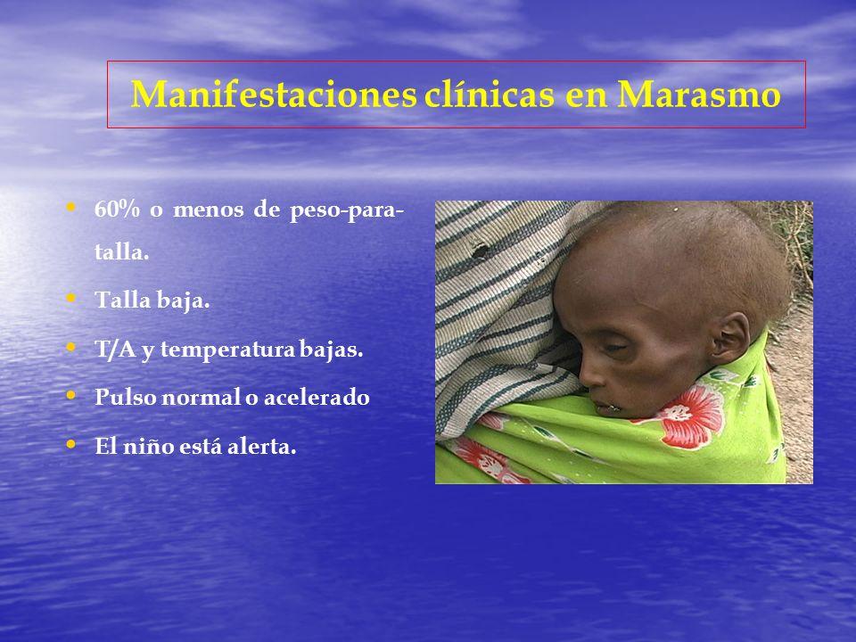 Manifestaciones clínicas en Marasmo