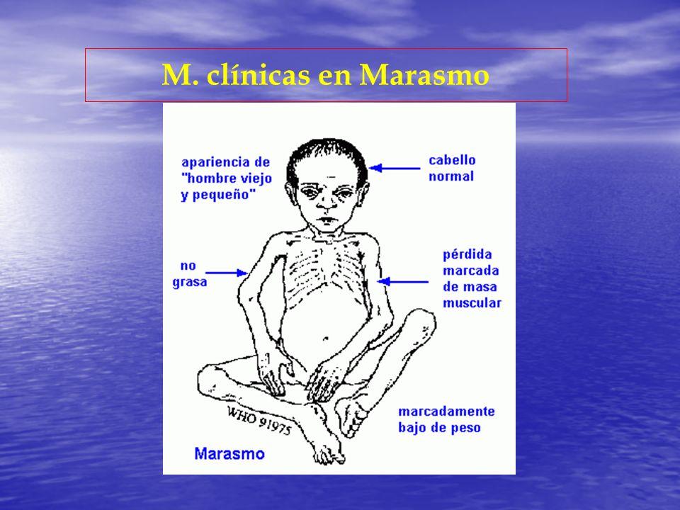 M. clínicas en Marasmo