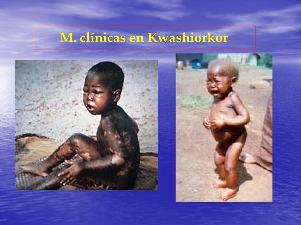 M. clínicas en Kwashiorkor