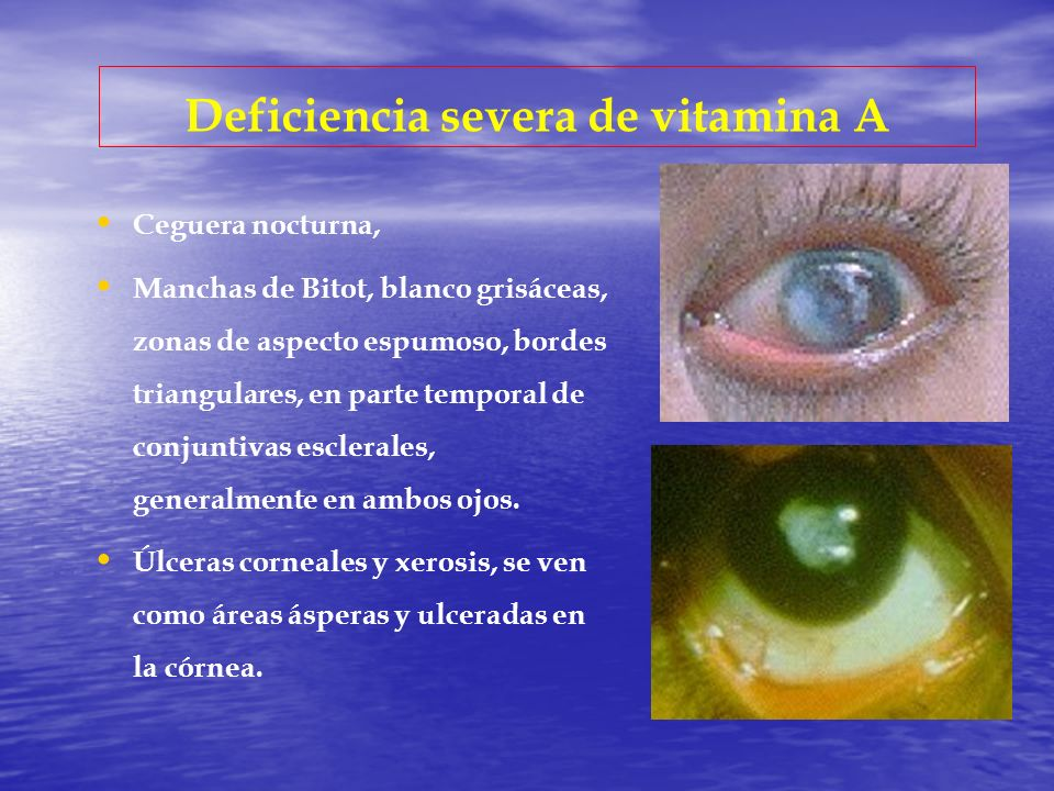 Deficiencia severa de vitamina A