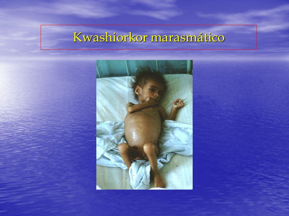 Kwashiorkor marasmático