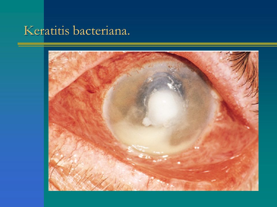 Keratitis bacteriana.