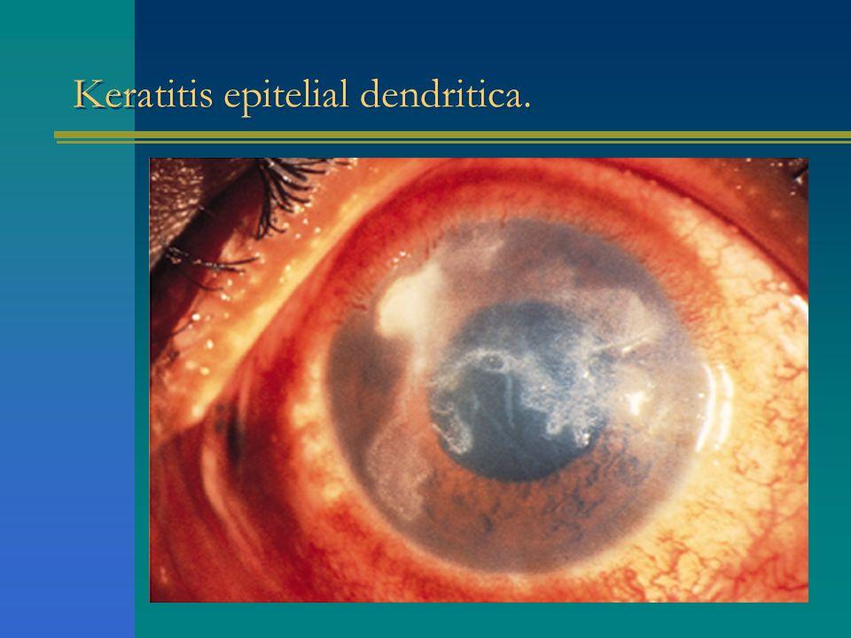 Keratitis epitelial dendritica.