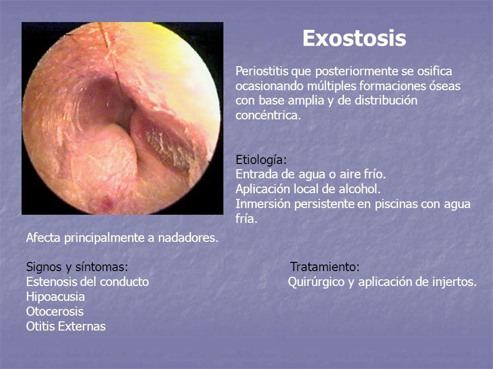 Exostosis Periostitis que posteriormente se osifica ocasionando múltiples formaciones óseas con base amplia y de distribución concéntrica.