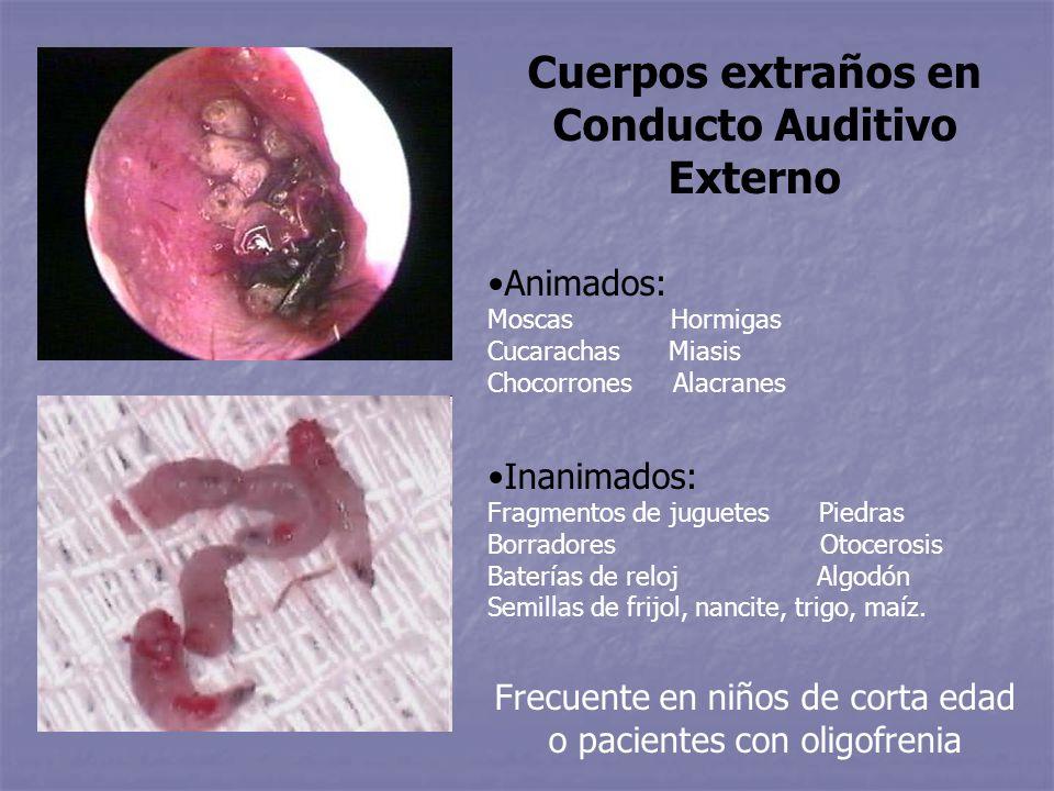 Cuerpos extraños en Conducto Auditivo Externo