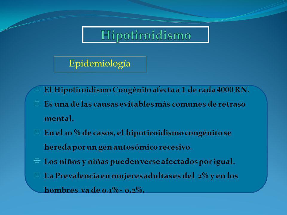 Hipotiroidismo Epidemiología
