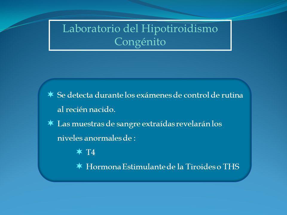 Laboratorio del Hipotiroidismo