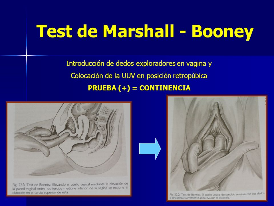 Test de Marshall - Booney