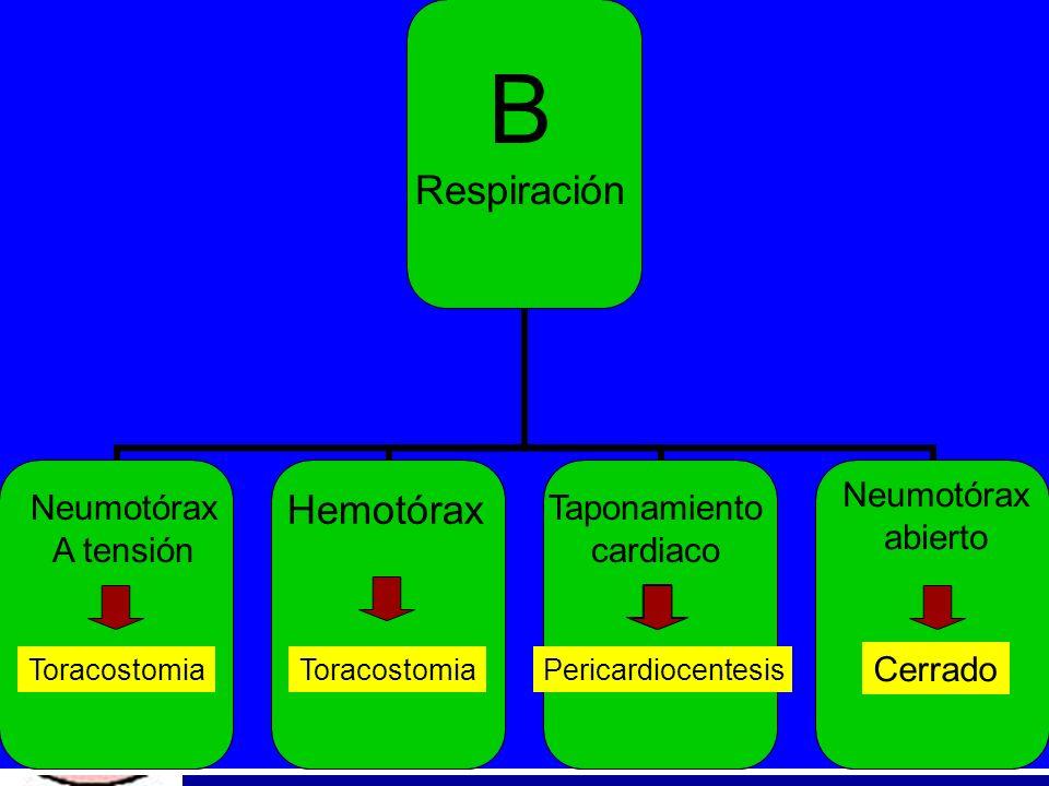 B Respiración Hemotórax Neumotórax abierto Neumotórax A tensión