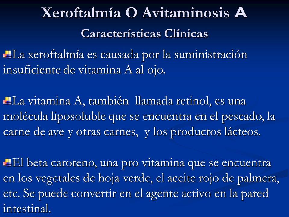 Xeroftalmía O Avitaminosis A Características Clínicas