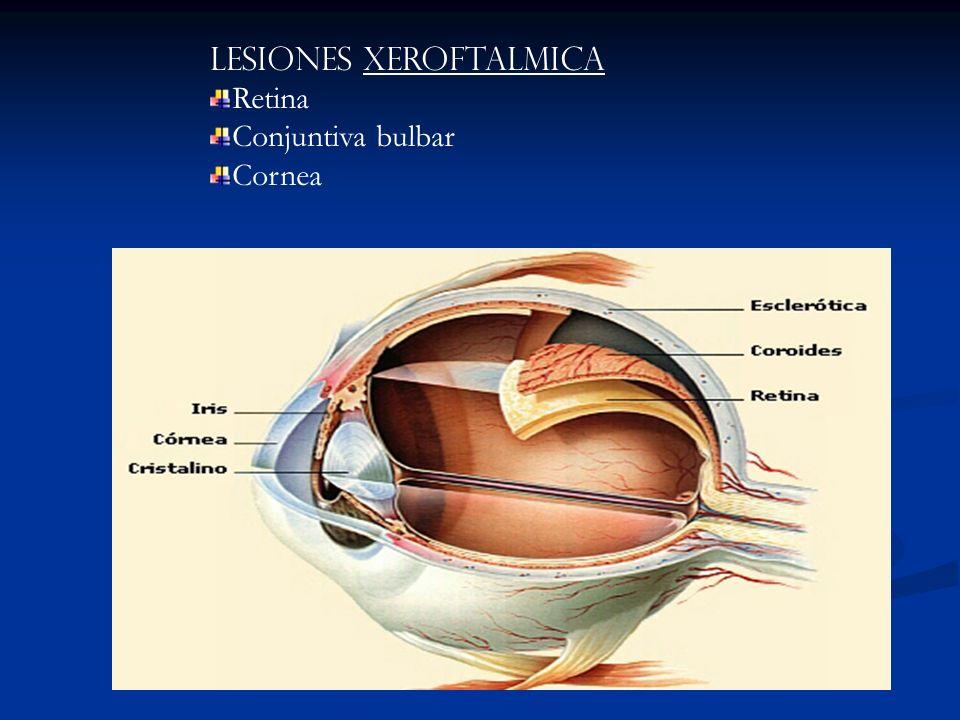 Lesiones Xeroftalmica
