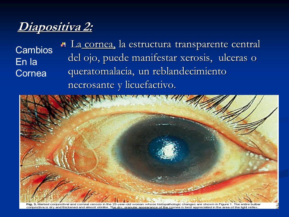 Diapositiva 2: