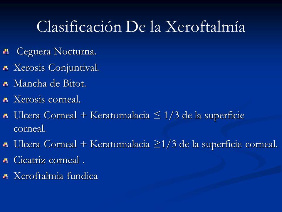 Clasificación De la Xeroftalmía