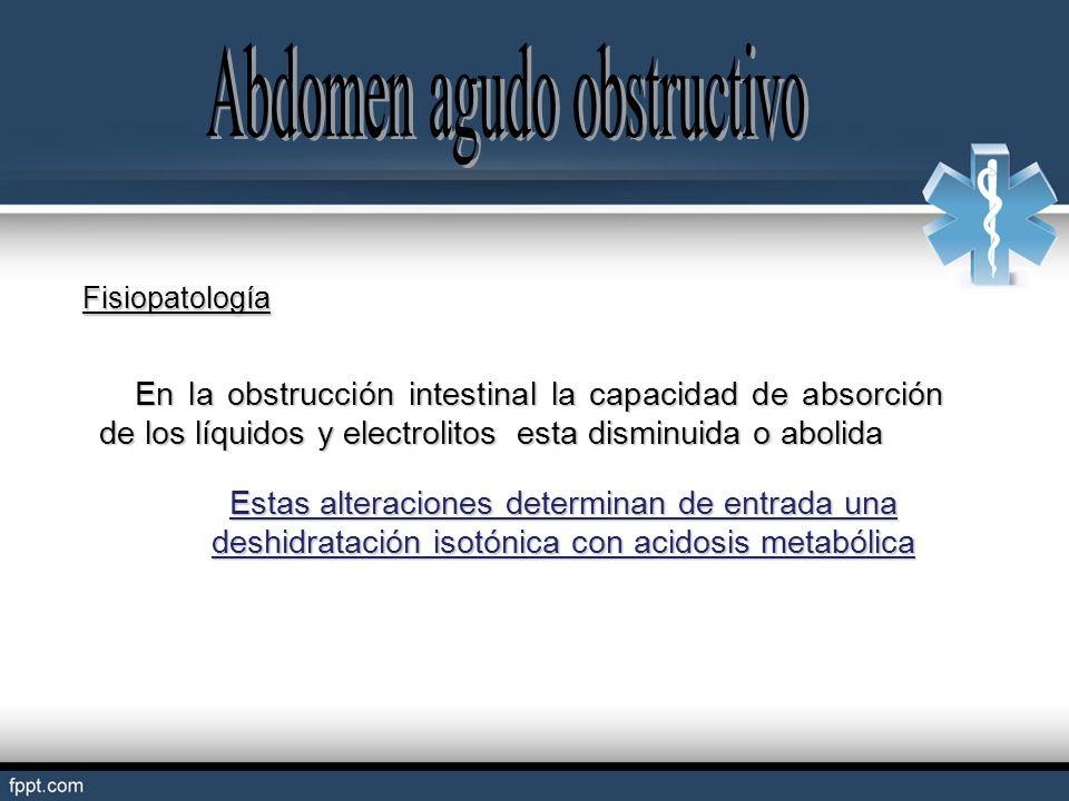 Abdomen agudo obstructivo