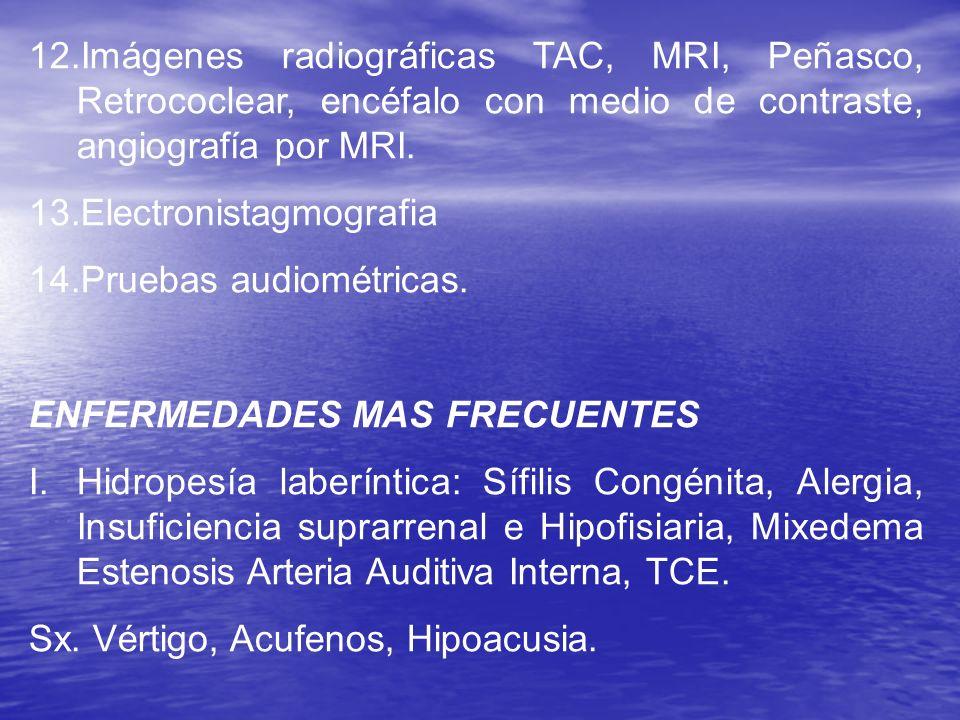 Imágenes radiográficas TAC, MRI, Peñasco, Retrococlear, encéfalo con medio de contraste, angiografía por MRI.