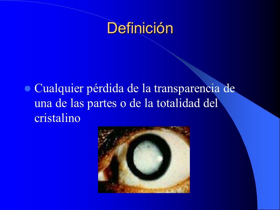 Definición Cualquier pérdida de la transparencia de una de las partes o de la totalidad del cristalino.