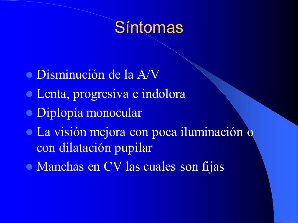 Síntomas Disminución de la A/V Lenta, progresiva e indolora