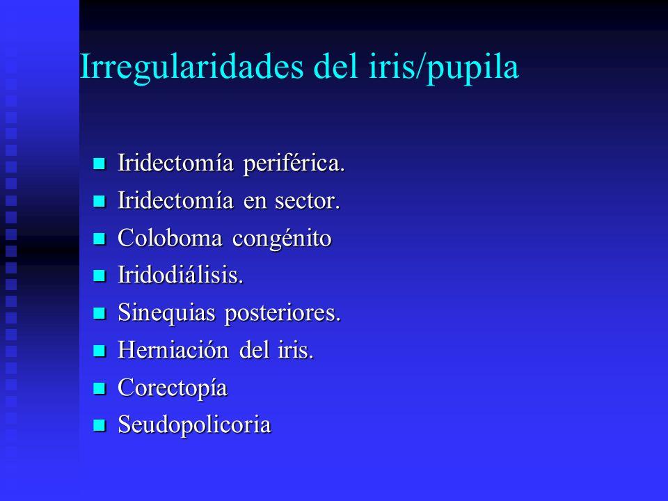 Irregularidades del iris/pupila