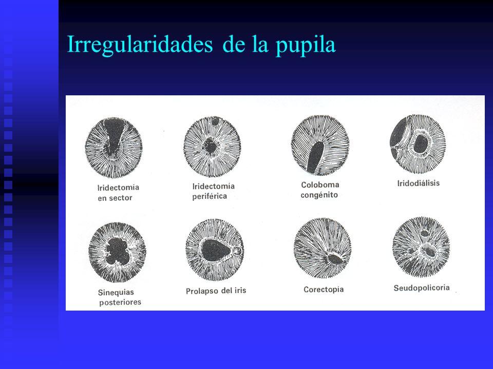 Irregularidades de la pupila