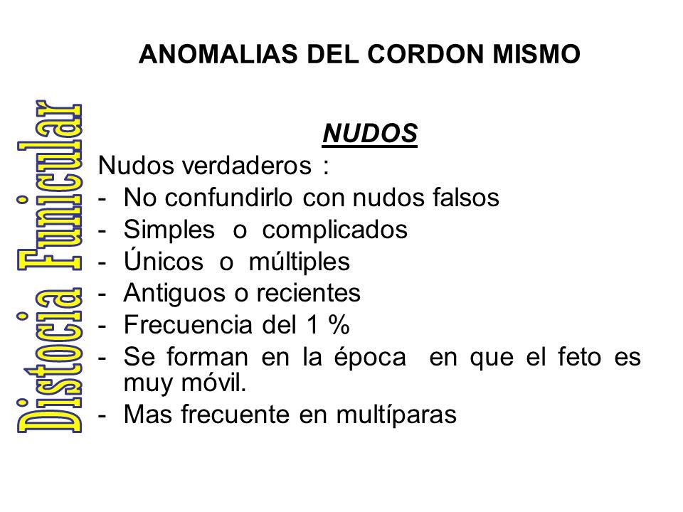 ANOMALIAS DEL CORDON MISMO