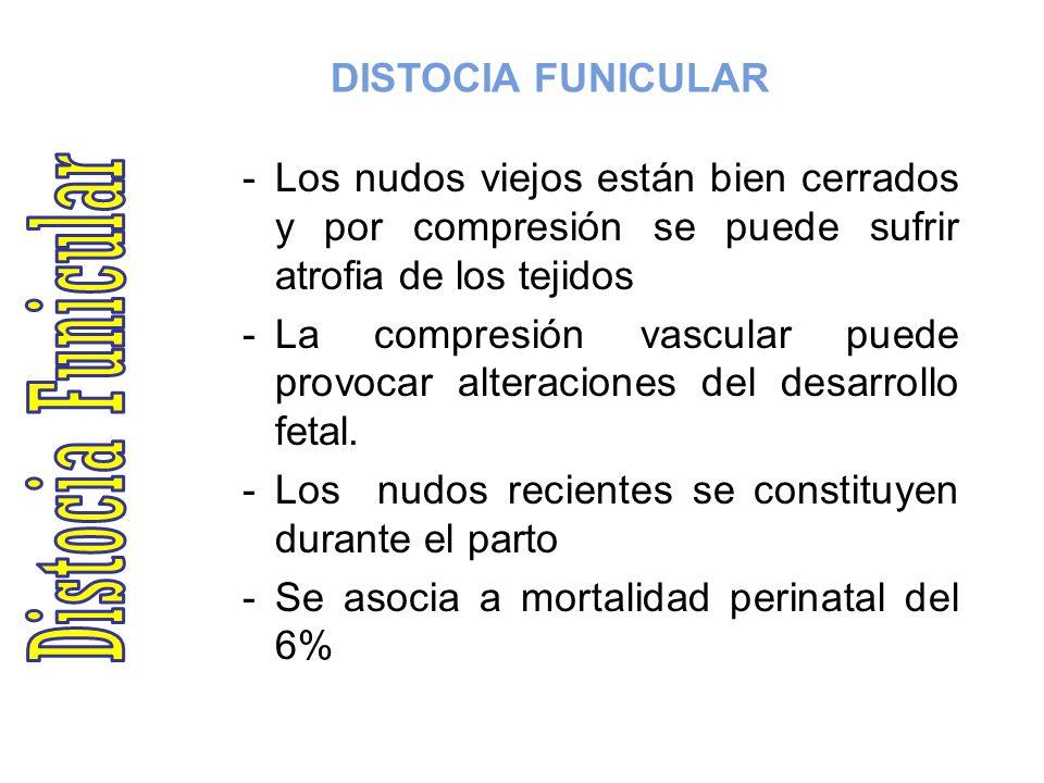 Distocia Funicular DISTOCIA FUNICULAR