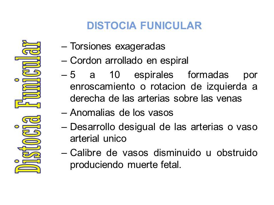 Distocia Funicular DISTOCIA FUNICULAR Torsiones exageradas