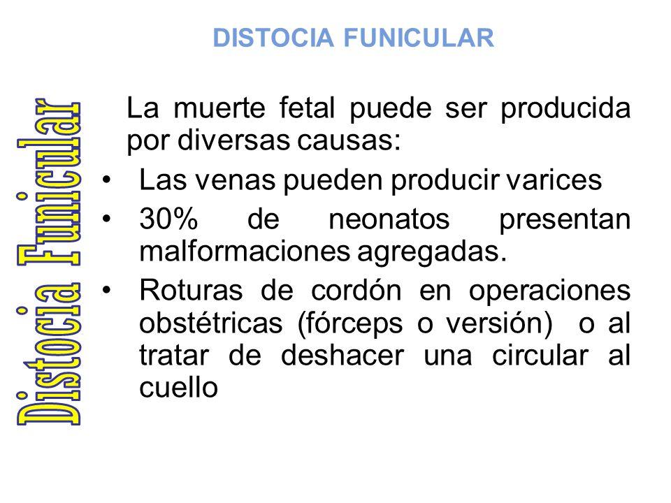 Distocia Funicular Las venas pueden producir varices