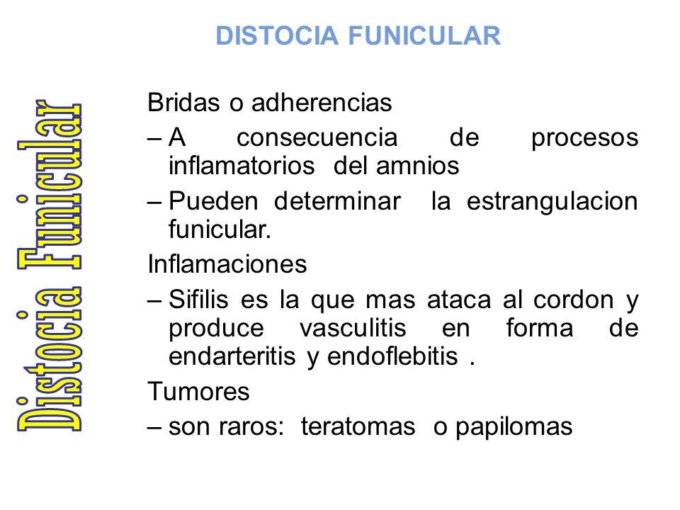 Distocia Funicular DISTOCIA FUNICULAR Bridas o adherencias