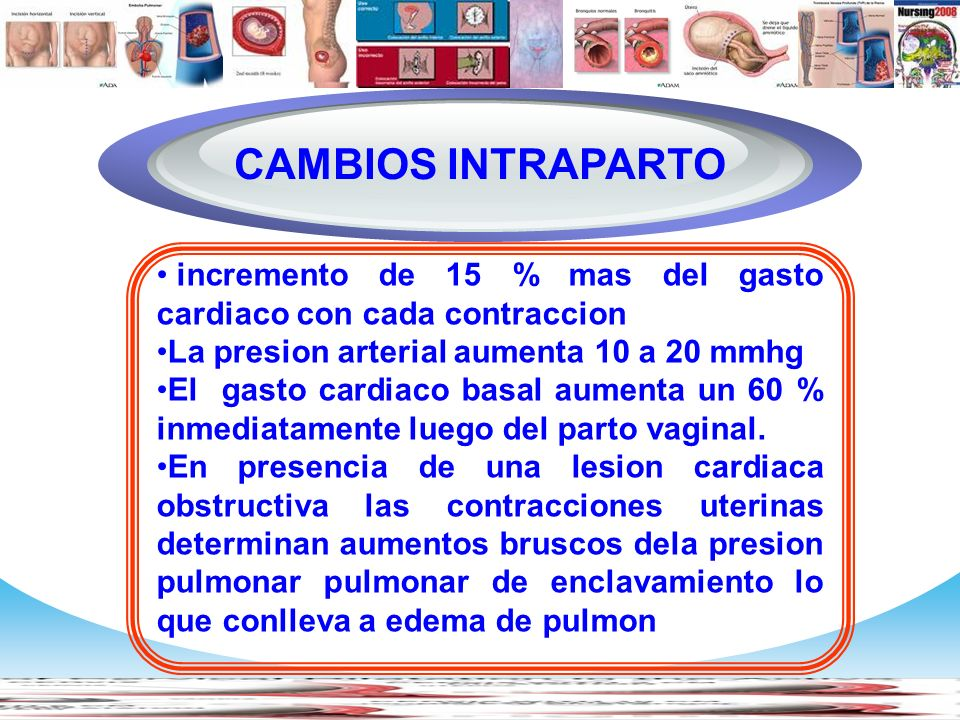 Diagram CAMBIOS INTRAPARTO
