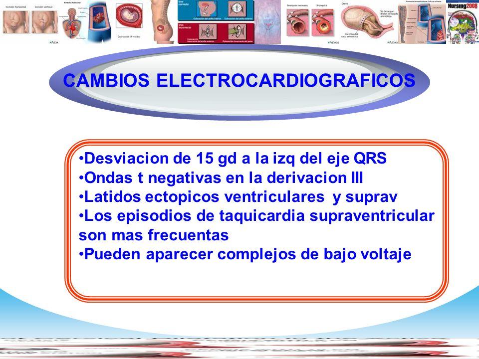 CAMBIOS ELECTROCARDIOGRAFICOS