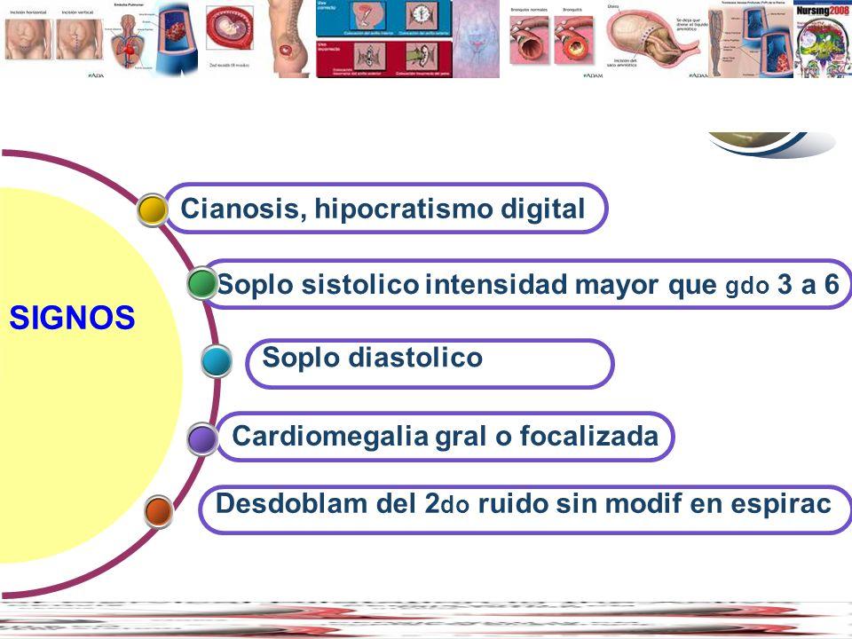 Contents SIGNOS Cianosis, hipocratismo digital