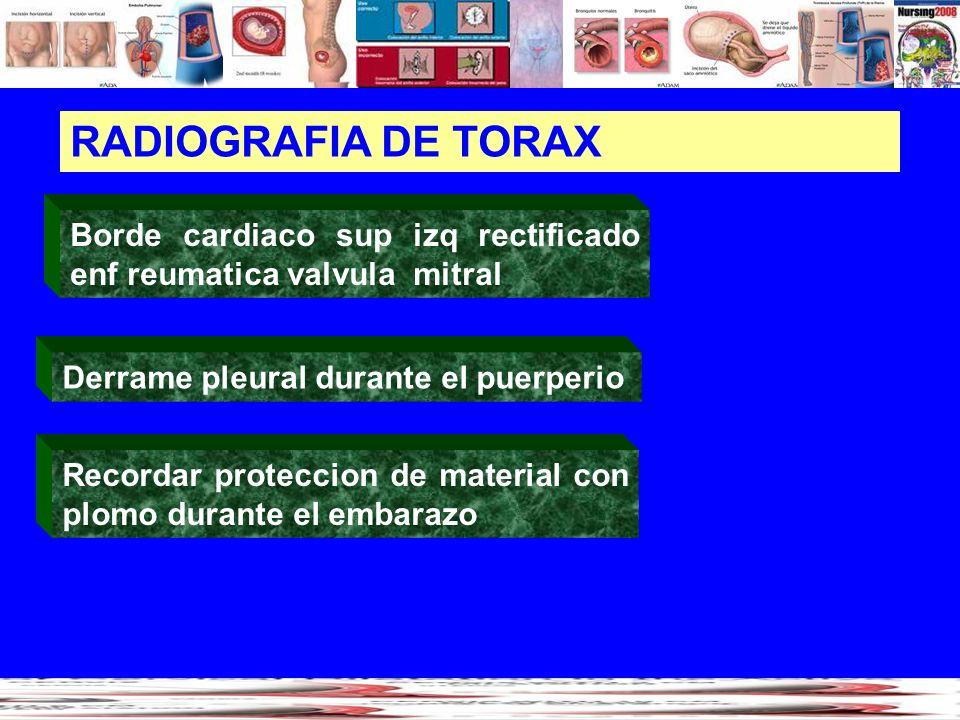RADIOGRAFIA DE TORAX Borde cardiaco sup izq rectificado enf reumatica valvula mitral. Derrame pleural durante el puerperio.