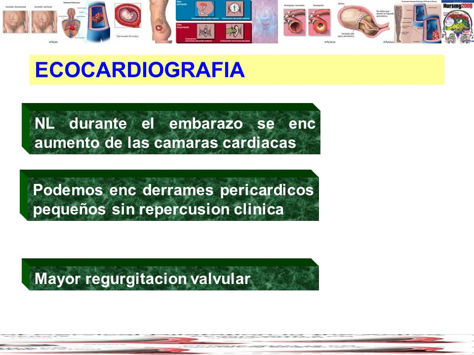 ECOCARDIOGRAFIANL durante el embarazo se enc aumento de las camaras cardiacas. Podemos enc derrames pericardicos pequeños sin repercusion clinica.