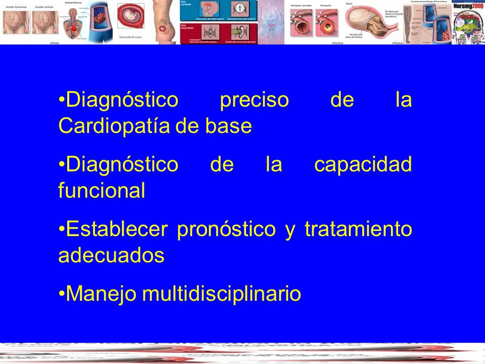 Diagnóstico preciso de la Cardiopatía de base