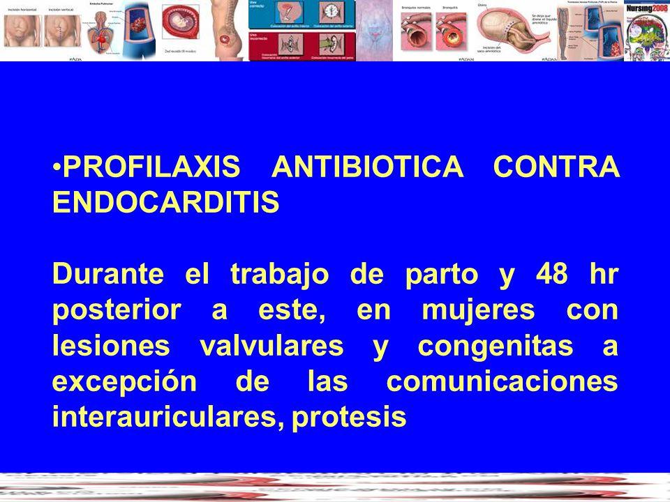 PROFILAXIS ANTIBIOTICA CONTRA ENDOCARDITIS