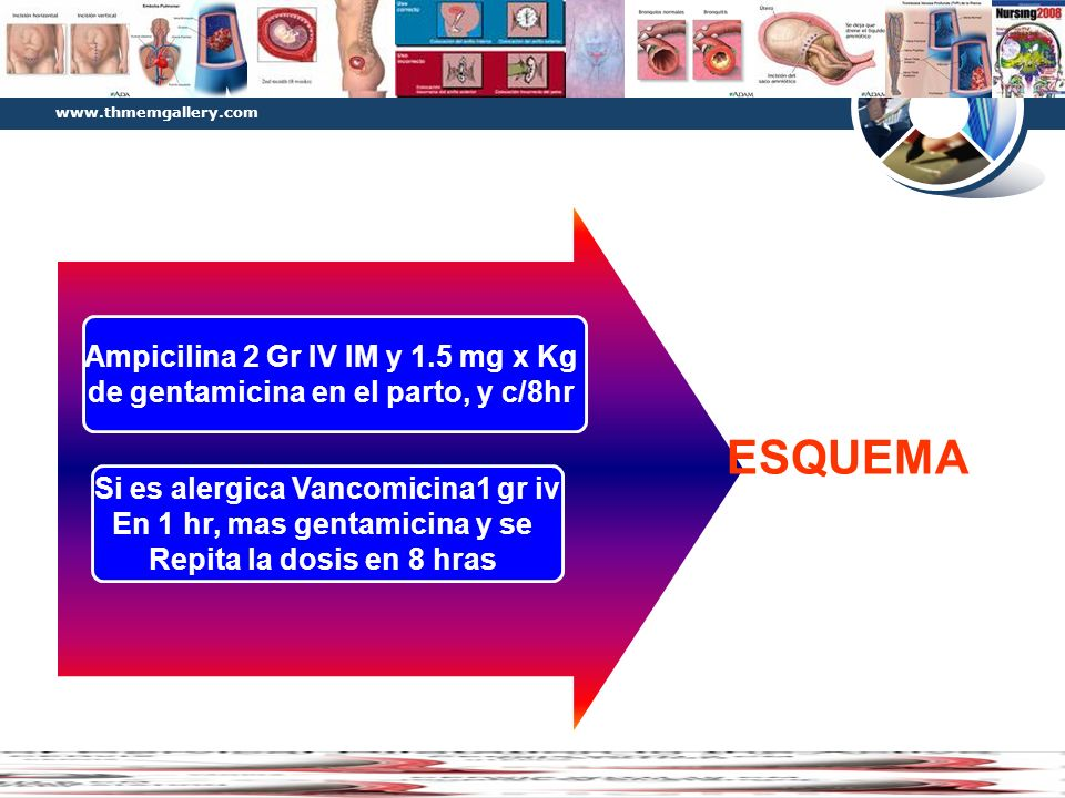 Diagram ESQUEMA Ampicilina 2 Gr IV IM y 1.5 mg x Kg