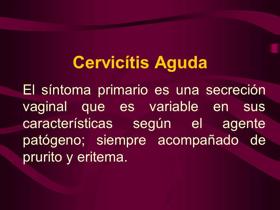 Cervicítis Aguda