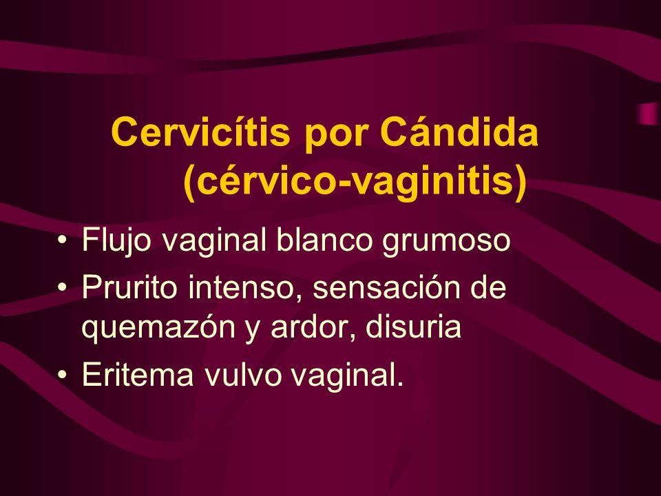 Cervicítis por Cándida (cérvico-vaginitis)