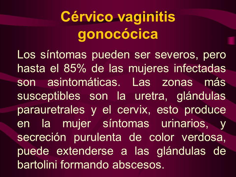 Cérvico vaginitis gonocócica