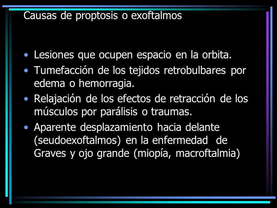 Causas de proptosis o exoftalmos