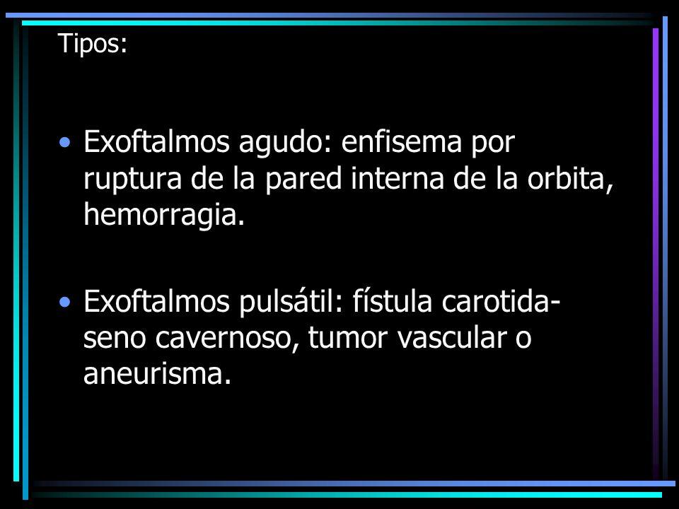 Tipos:Exoftalmos agudo: enfisema por ruptura de la pared interna de la orbita, hemorragia.