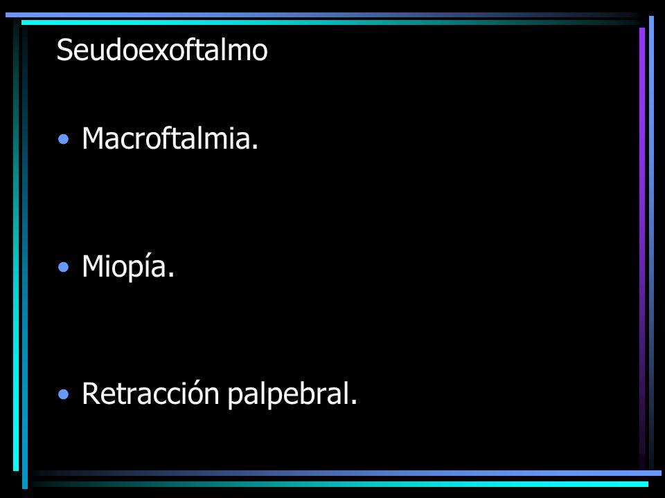 Seudoexoftalmo Macroftalmia. Miopía. Retracción palpebral.