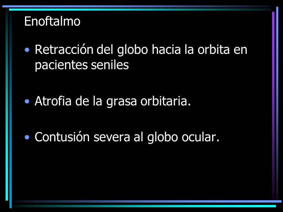 Enoftalmo Retracción del globo hacia la orbita en pacientes seniles. Atrofia de la grasa orbitaria.