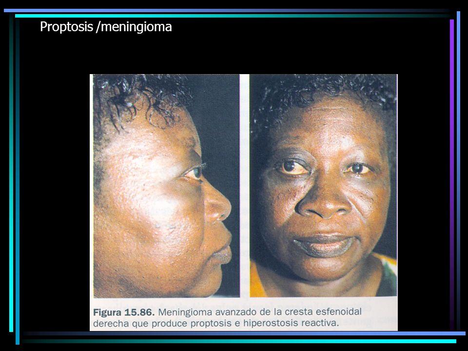Proptosis /meningioma
