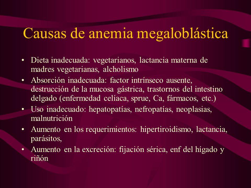 Causas de anemia megaloblástica