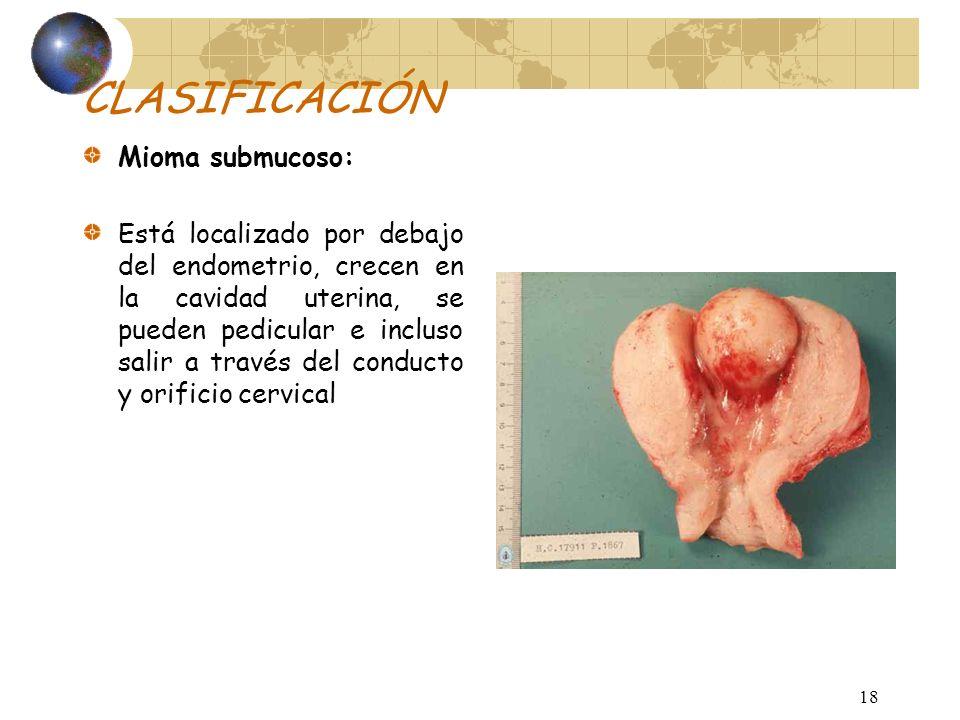 CLASIFICACIÓN Mioma submucoso: