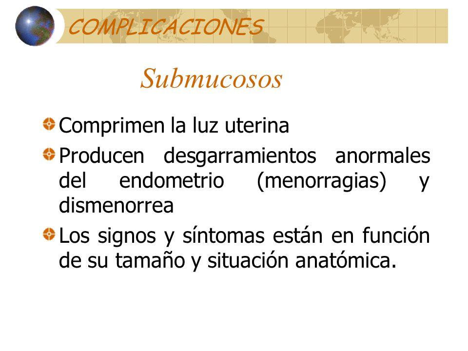 Submucosos COMPLICACIONES Comprimen la luz uterina