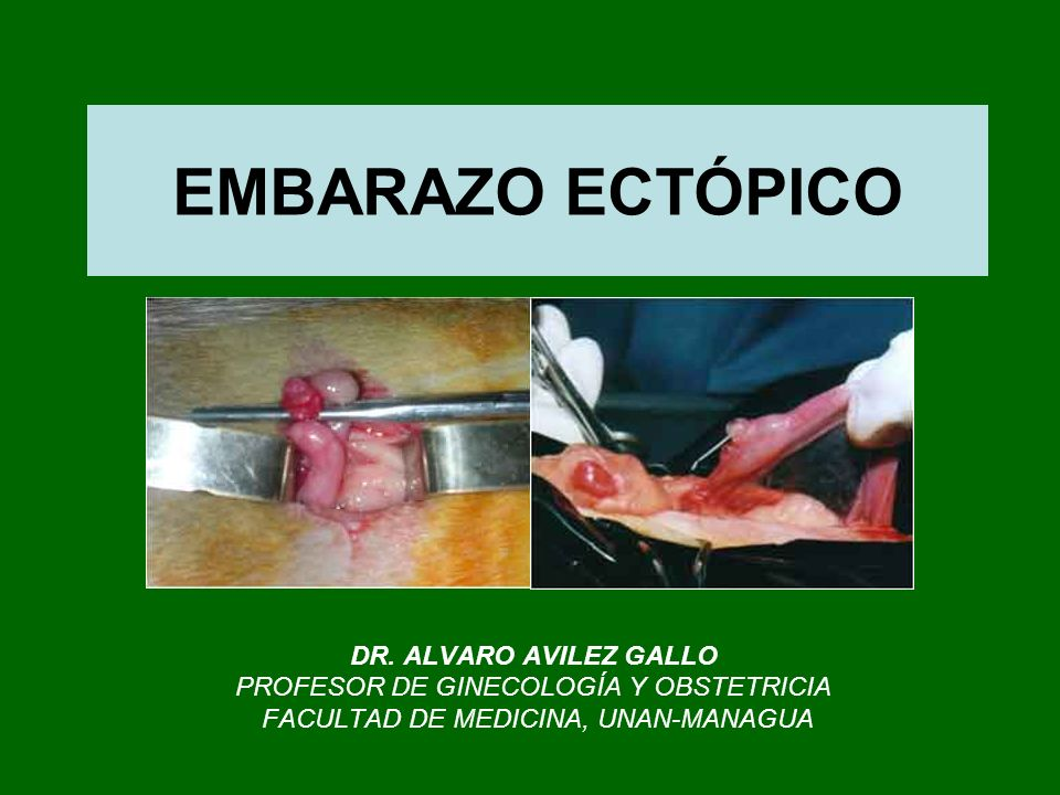 EMBARAZO ECTÓPICO DR. ALVARO AVILEZ GALLO