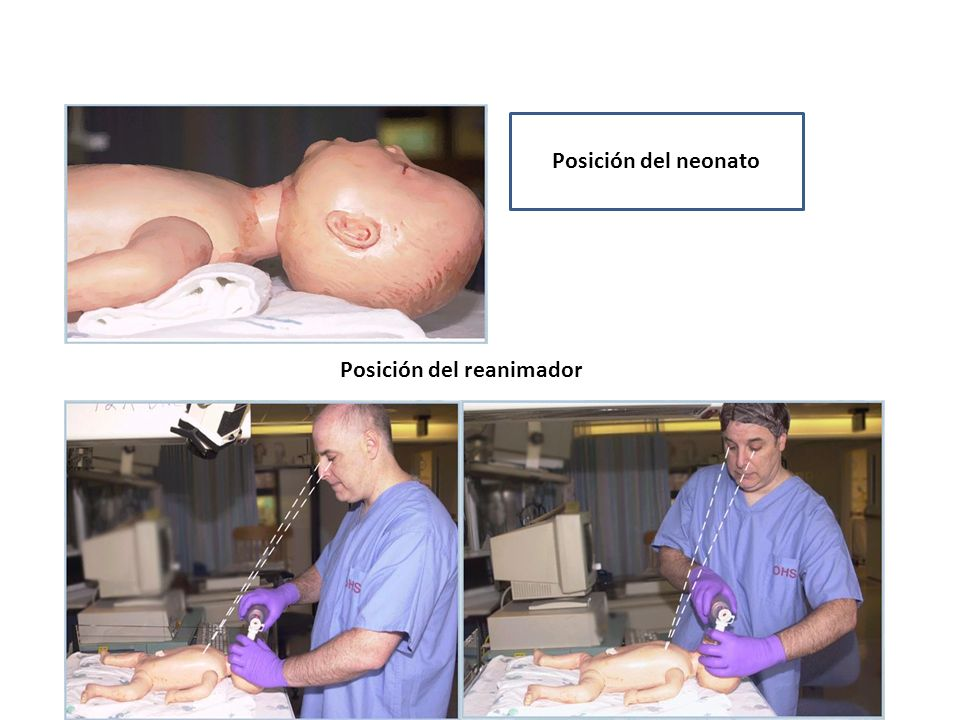 Posición del neonato Posición del reanimador